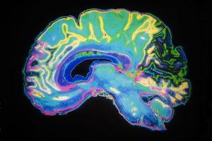 מה לעשות בעת התקף אפילפסיה?